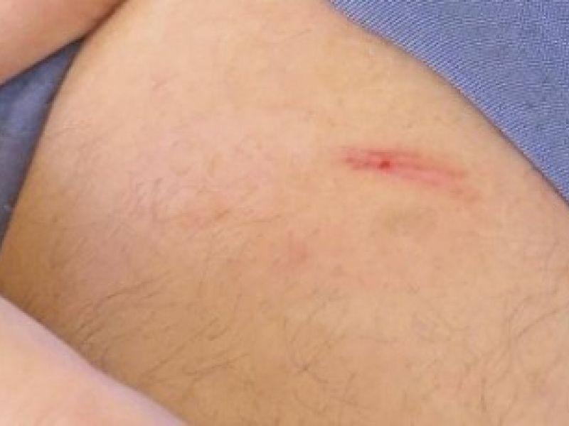 Hospital de Arapiraca confirma segundo caso de ataque com agulhas de seringa na cidade