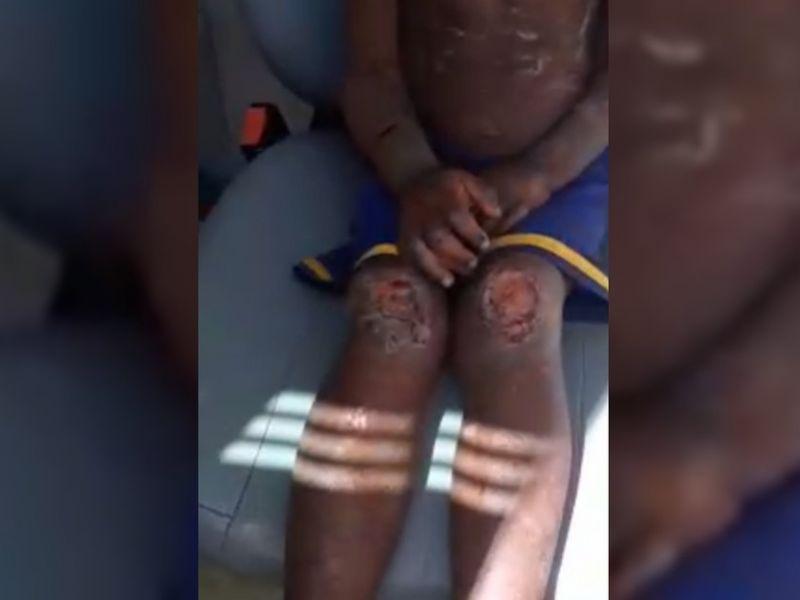 Criança morre e três irmãos ficam feridos após serem espancados por tios