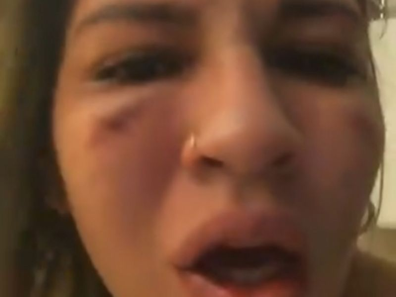 Esposa de Jean, goleiro do São Paulo, posta vídeos machucada e acusa jogador de agressão