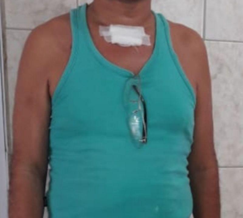 Paciente de SP agradece equipe do HE do Agreste que salvou sua vida, após incêndio